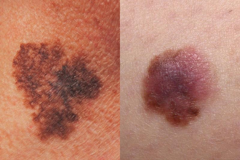 ¿Cómo se ven los diferentes tipos de cáncer de piel?