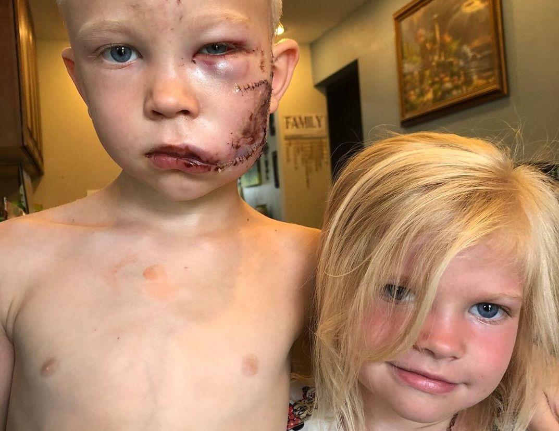 niño que salvó a su hermana