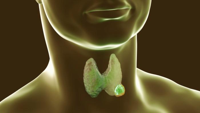 Jugo que cura la tiroides