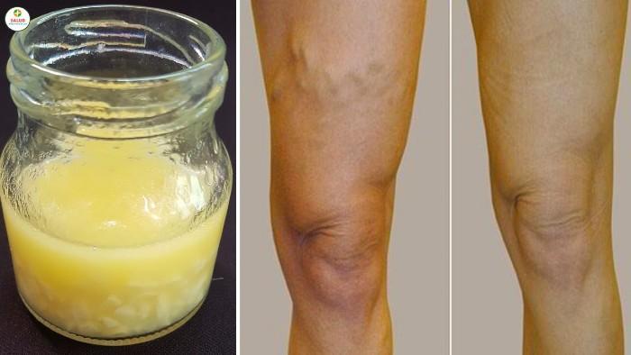 arañitas de las piernas