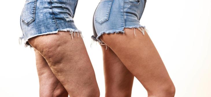 celulitis en las piernas de las mujeres